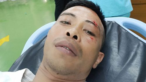Bali bouncer Adni Junus Liu  allegedly punched by Australian teen Zac William Whiting 1