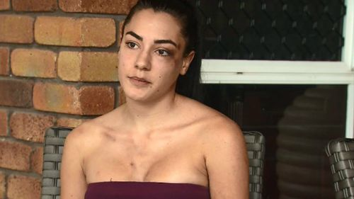 Nicole Mauger has visible bruising on her face and chest, left arm and shoulder. (9NEWS)