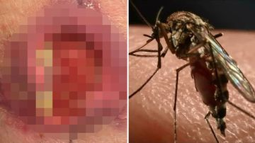 Buruli Ulcer flesh eating disease mosquito