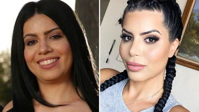 Larissa Dos Santos from 90 Day Fiance plastic surgery transformation