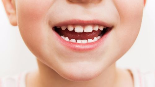 There's been a spike in the number of South Australian children needing hospital treatment for dental problems.