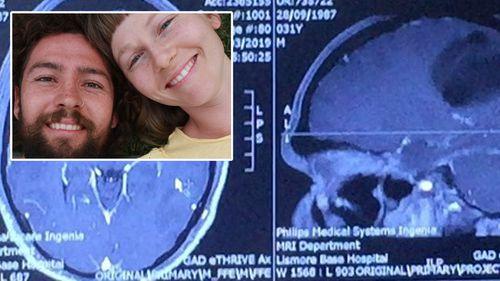 Joel and Anita North and Joel's MRI scan.