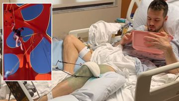 Casey Holladay who broke his pelvis in a fall from a bungee trampoline on a cruise ship is suing the cruise liner for $14 million.