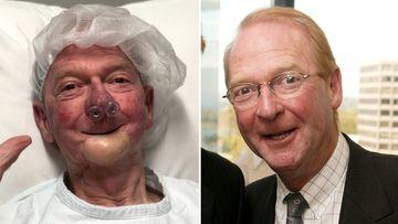 John Blackman, hospital bed, surgery