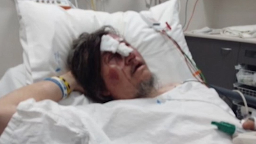 Mathew Lyons, 46, was repeatedly punched and kicked to the head while walking home from the Mid Valley Shopping Centre.