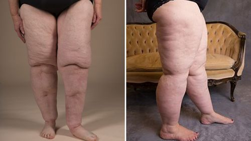 A photo showing the legs of Nola Young (left) and Cassie (right), who are both affected by lipoedema.