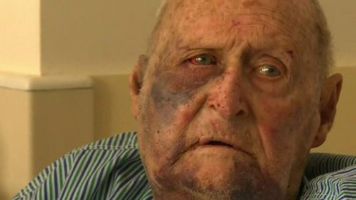 Mr Dilger was left with a fractured eye socket and a broken nose and jaw. (9NEWS)