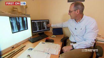 VIDEO: Major trial could change the way we fix broken bones