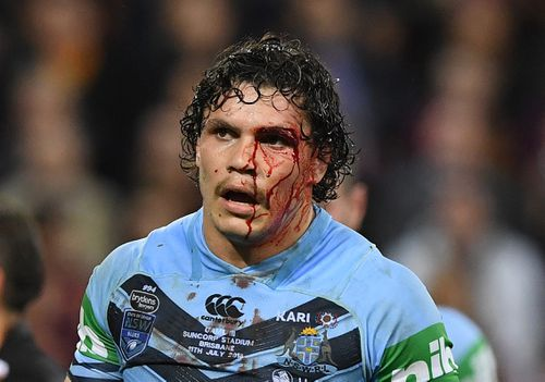 James Roberts was also left bloodied and bruised during the game as the tackles strengthened. Picture: Getty.