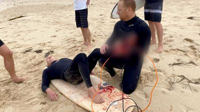 Shark attack wife saw happening