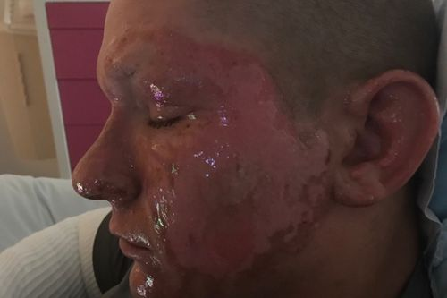 Alex Childress' brush with Hogweed caused the skin on the side of his face to melt away. Picture: Supplied