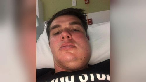 Trinity Old Scholars player Carl Teusner, who's jaw was broken in two places during the game, has reported the incident to Police.