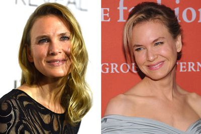 "When she stepped out at the <i>ELLE</i> Style Awards, Renee Zellweger had the whole world asking, ""OMG WTF has she done to her face!?"" and for good reason. <br/><br/>The 45-year-old actress was virtually unrecognizable from the adorable, squinty star we'd come to know and love in the past. <br/>"