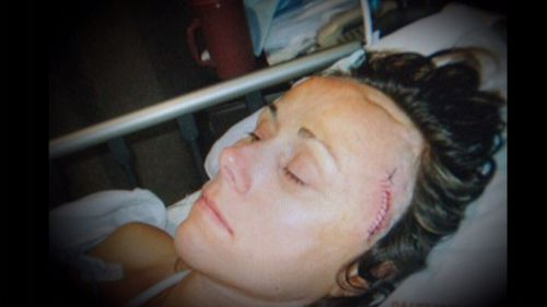 Kelli has lost a quarter of her brain tissue to surgery.
