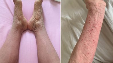 Susan Describes her skin now as 'Elephant skin', it is stronger but shows signs of damage.