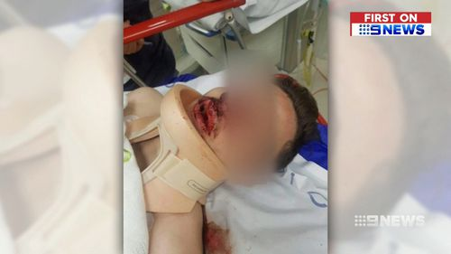 The 18-year-old suffered a broken nose, fractured cheekbone and lost a tooth.