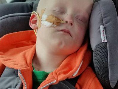 James sleeping after a treatment.