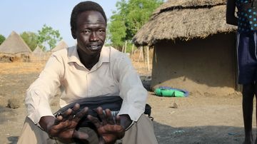 Deng Machar sits in his yard recounting the day his three children were abducted from his home. (AP)