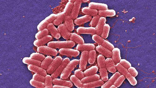 The E.coli virus.