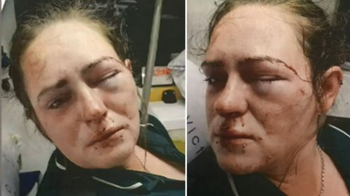 The 23-year-old's eye socket was broken in the alleged road rage incident.