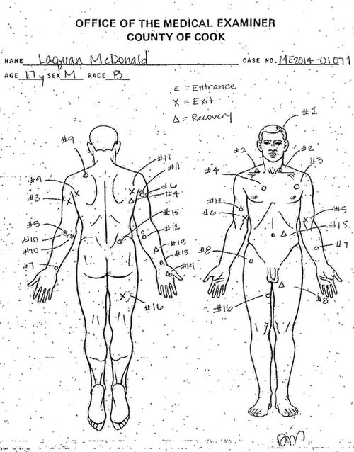 A diagram of bullet holes allegedly suffered by 17 year-old Laquan McDonald. (AAP)