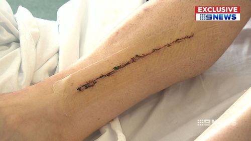 Veins were taken from Mr Riddell's legs to bypass the diseased arteries of his heart. (9NEWS)