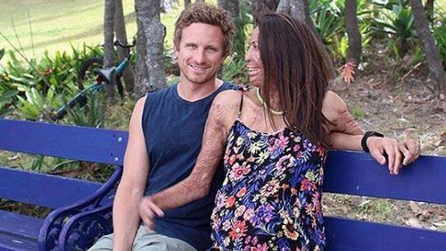 Turia Pitt with fiance Michael Hoskin. (Instagram)