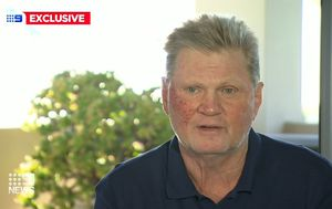 Paul 'Fatty' Vautin reveals skin cancer scare