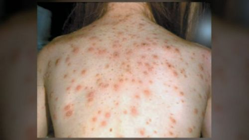 Symptoms of measles include a general fever, sore eyes and a cough that is followed a few days later by a blotchy rash that spreads from the head and neck to the rest of your body.