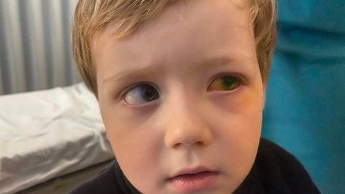 James Lapthorn, 3, received chemical burns in his eye from using a hand sanitiser foot pump.