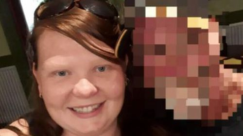 Kayla Golding, 29, was found on a footpath with critical injuries to her neck outside an apartment block on Riverway Drive in Condon just after 7pm on Friday.