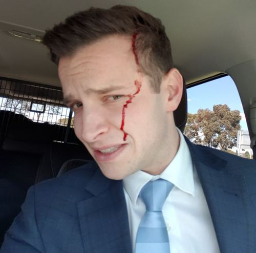 Mark Santomartino was left with blood down his face after the magpie attack.