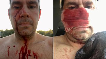 James Taylor was in the water at Mullaloo Beach in Perth's north yesterday afternoon when he felt a searing pain on his face.