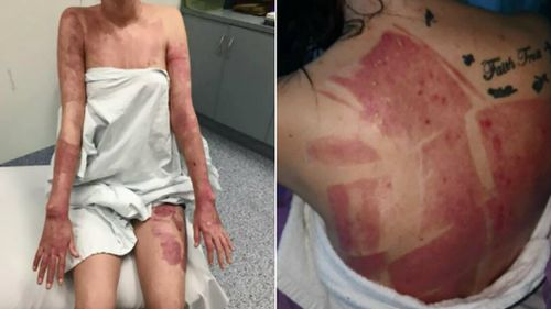Kyesha Finemore woke up in hospital with severe burns. Pictures: Supplied