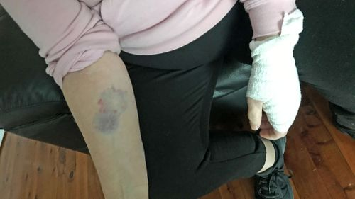 Dog owner Tina Aggio was also injured in the attack.