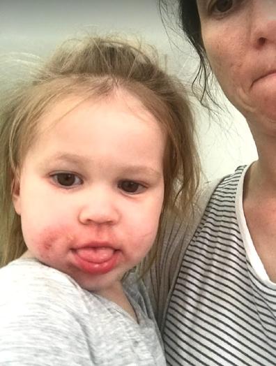 Poppy eczema