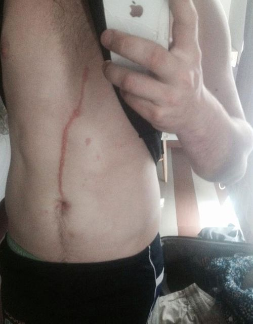 The scar was up to 30cm long after the small tropical spider burrowed into his stomach. (Picture: Facebook)