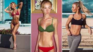 Suffering from severe anorexia, Hattie Boydle weighed just 26 kilograms. But she recovered and became a world champion fitness model and inspirational speaker.