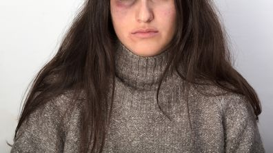 What happened when my date gave me a black eye