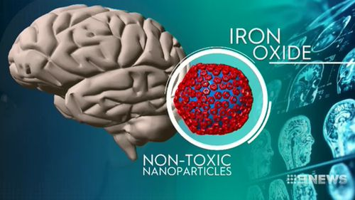 The team are using nanoparticles made of iron oxide with special magnetic properties and coated with an antibody to seek out and target the plaques in the brain.