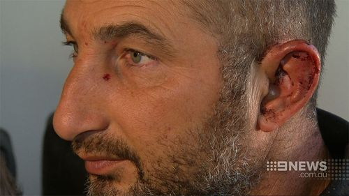 Tayfun Uluc was beaten during the home invasion. (9NEWS)