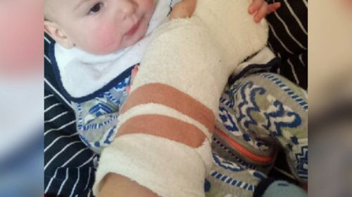 The mother-of-one claims she instinctively held out her hand to protect her six-month-old son.
