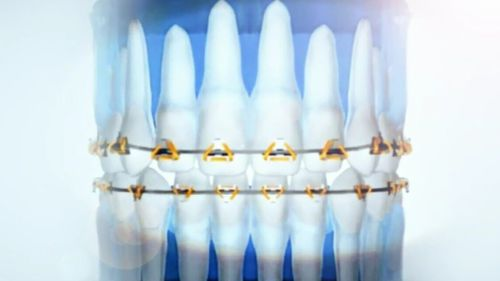The technology works by attaching triangular brackets to the teeth, with a flexible wire system used to move the crown and root simultaneously. (9NEWS)
