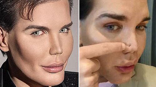 Plastic surgery addict who became Ken doll admitted to hospital with rotting nose