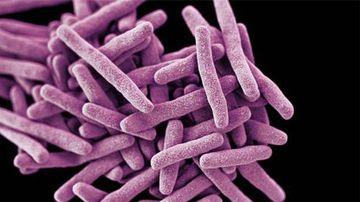 Rare, 'potentially deadly' superbug found in Australia