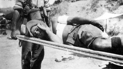 A wounded Anzac at Gallipoli.