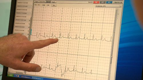 The condition makes the heart's upper chambers beat chaotically, out of sync with the rest of the heart. Picture: 9NEWS