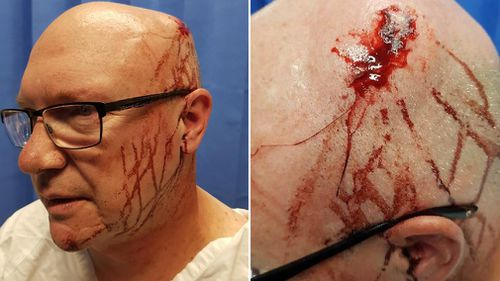 The acting inspector tried to intervene in a fight between two men when he was hit with a glass bottle. (Supplied)