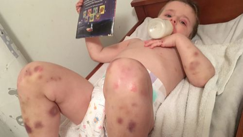 The doting parents of four had no idea they carried – let alone could have passed on – such an aggressive time bomb that effectively switched off Cooper's immune system and left him in excruciating pain. (60 Minutes)