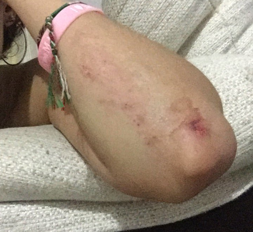 Locals posted to social media scrapes and bruises they received while sliding down the Estepona chute.